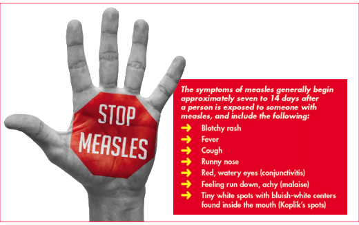 Medical Advice: What you need to know about the measles